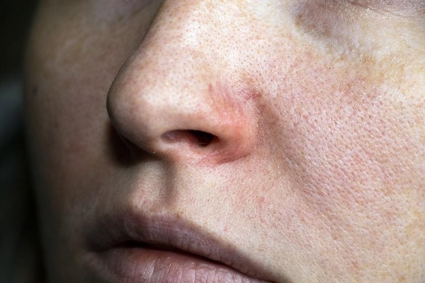 фото симптомов аллергии на алкоголь на лице