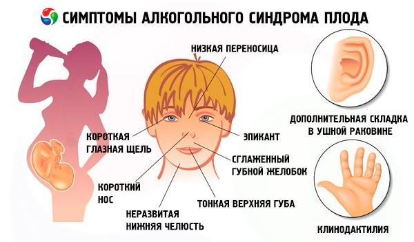 фото признаков фетального алкогольного синдрома (ФАС)