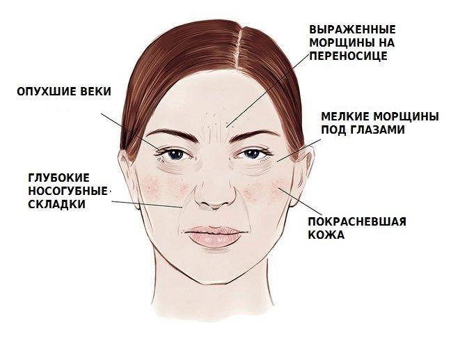 как алкоголь влияет на кожу лица