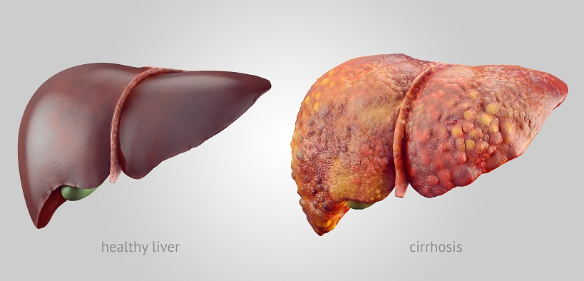 цирроз печени после алкоголя