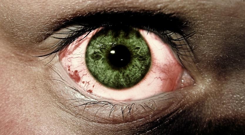 почему с похмелья красные глаза